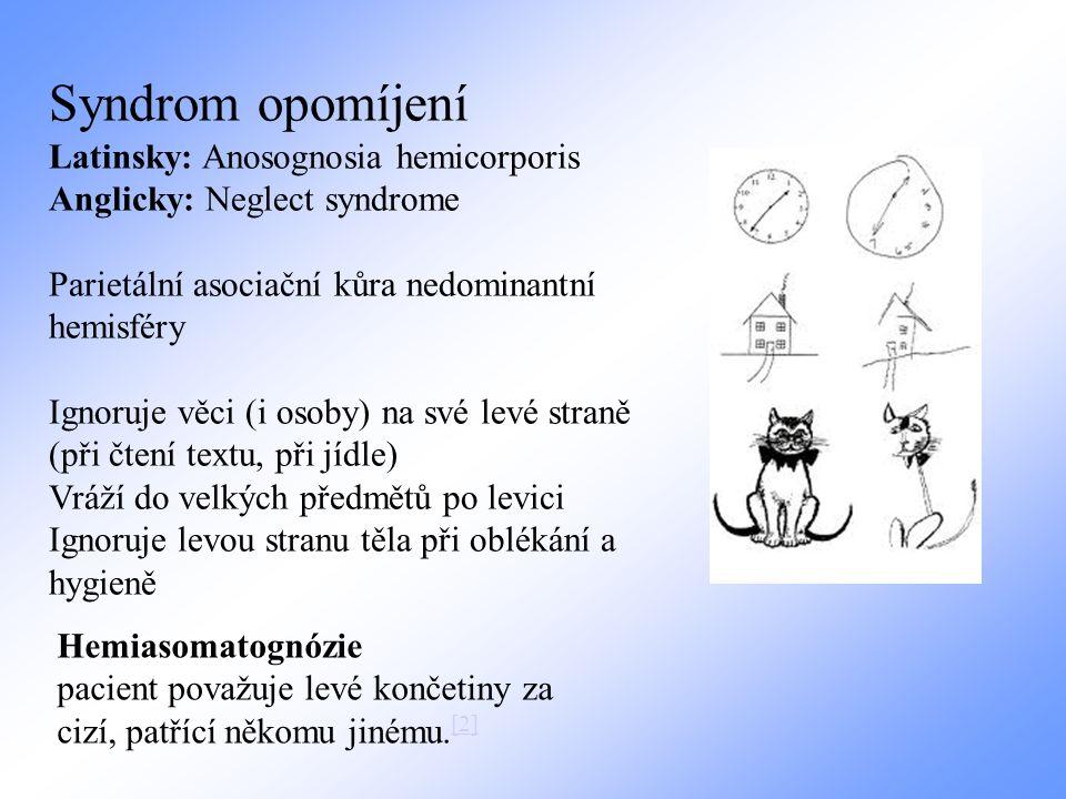 Hemiasomatognózie pacient považuje levé končetiny za cizí, patřící někomu jinému. [2] [2] Syndrom opomíjení Latinsky: Anosognosia hemicorporis Anglick