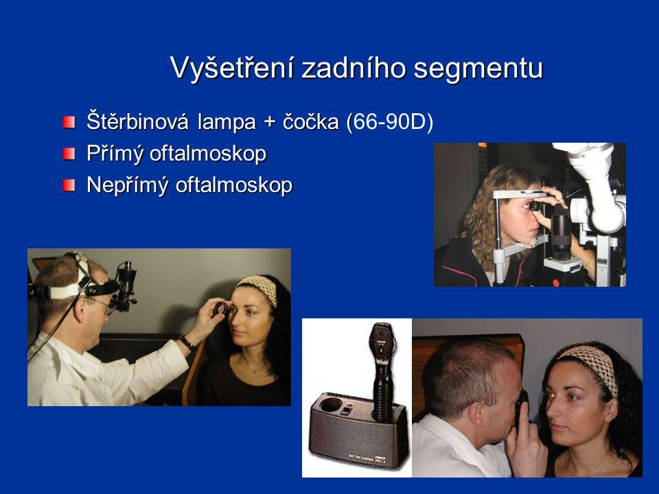Vyšetření zadního segmentu Štěrbinová lampa + čočka ( Štěrbinová lampa + čočka (66-90D) Přímý oftalmoskop Nepřímý oftalmoskop