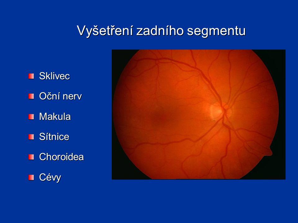 Vyšetření zadního segmentu Sklivec Oční nerv MakulaSítniceChoroideaCévy