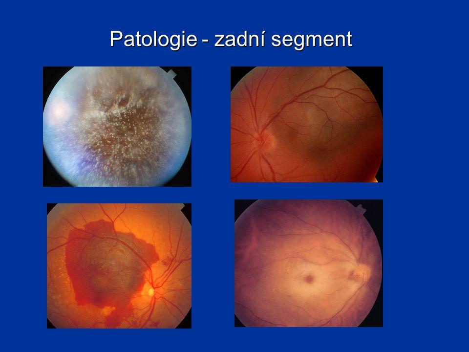 Oční nerv - papila