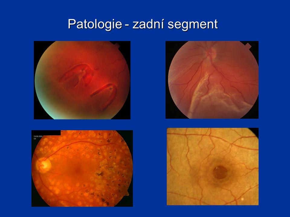Patologie - zadní segment