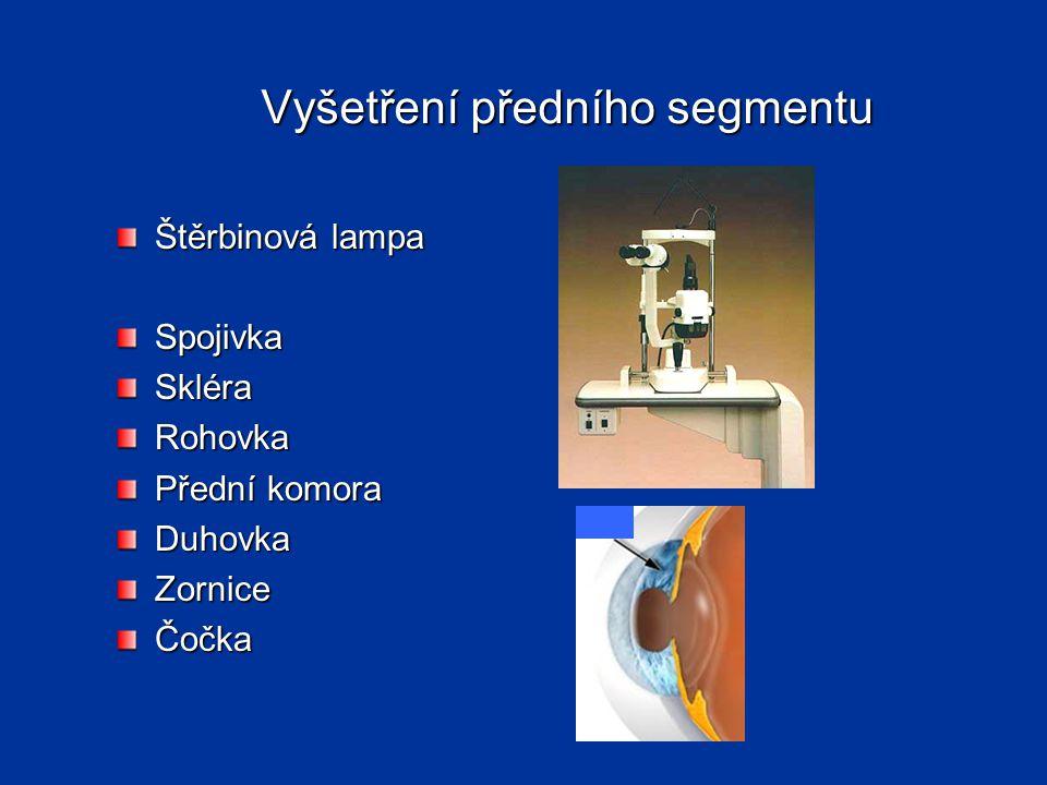 Vyšetření předního segmentu Štěrbinová lampa SpojivkaSkléraRohovka Přední komora DuhovkaZorniceČočka