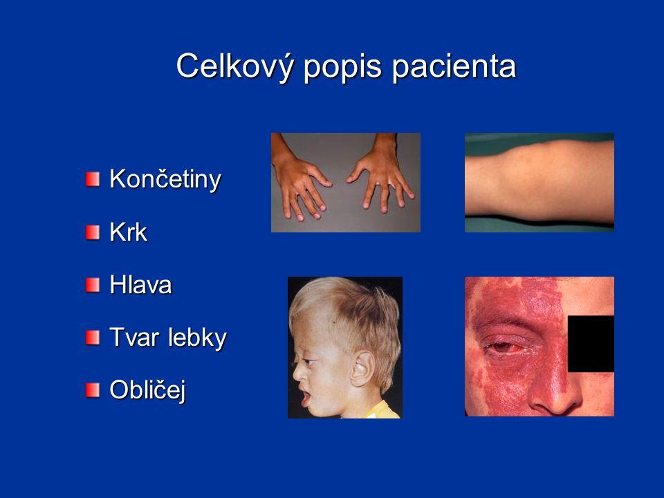 Celkový popis pacienta KončetinyKrkHlava Tvar lebky Obličej