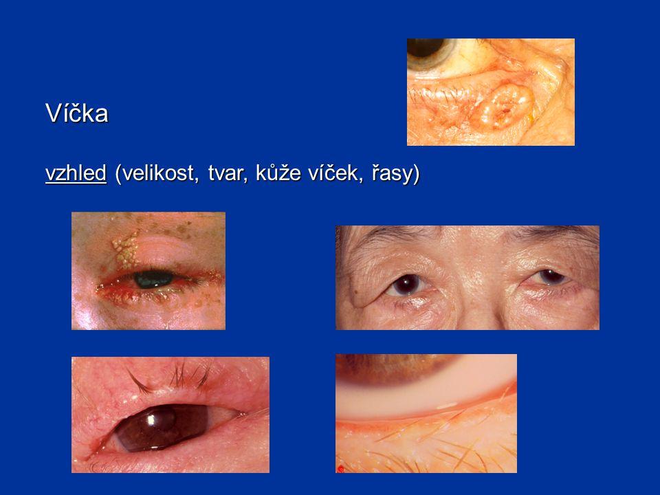 Víčka poloha víček určuje šíři oční štěrbiny Zúžení oční štěrbiny (ptóza) - neurogenní - neurogenní - myogenní - myogenní - porucha nervosvalového přenosu - porucha nervosvalového přenosu Rozšíření oční štěrbiny - při exoftalmu - při exoftalmu - při retrakci víček - při retrakci víček x pseudoptóza