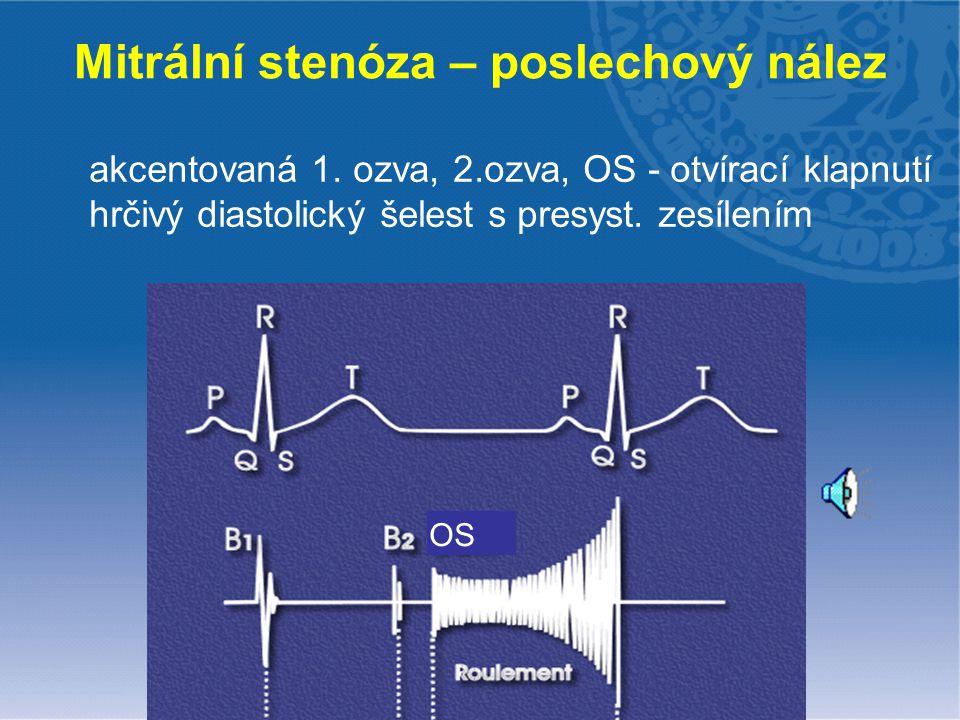 Mitrální stenóza – poslechový nález akcentovaná 1. ozva, 2.ozva, OS - otvírací klapnutí hrčivý diastolický šelest s presyst. zesílením OS