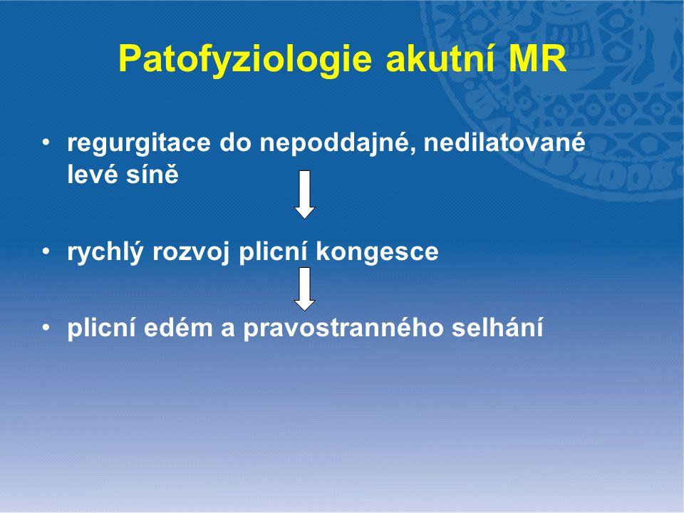 Patofyziologie akutní MR regurgitace do nepoddajné, nedilatované levé síně rychlý rozvoj plicní kongesce plicní edém a pravostranného selhání