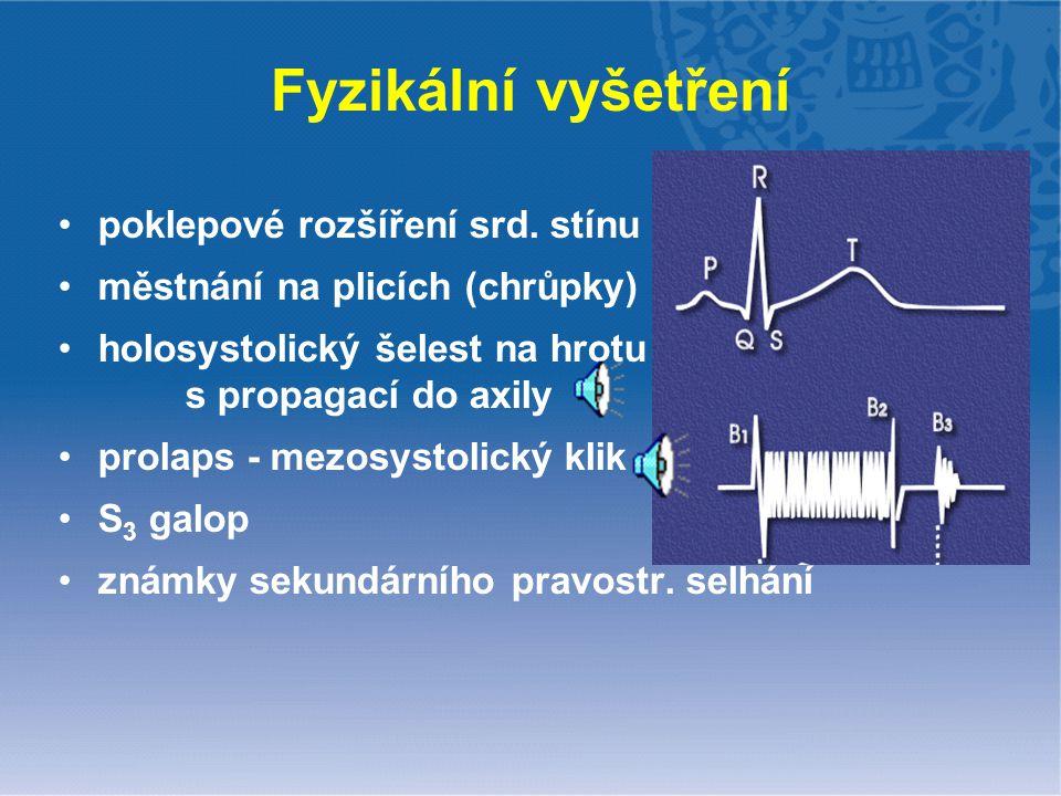 Fyzikální vyšetření poklepové rozšíření srd. stínu městnání na plicích (chrůpky) holosystolický šelest na hrotu s propagací do axily prolaps - mezosys