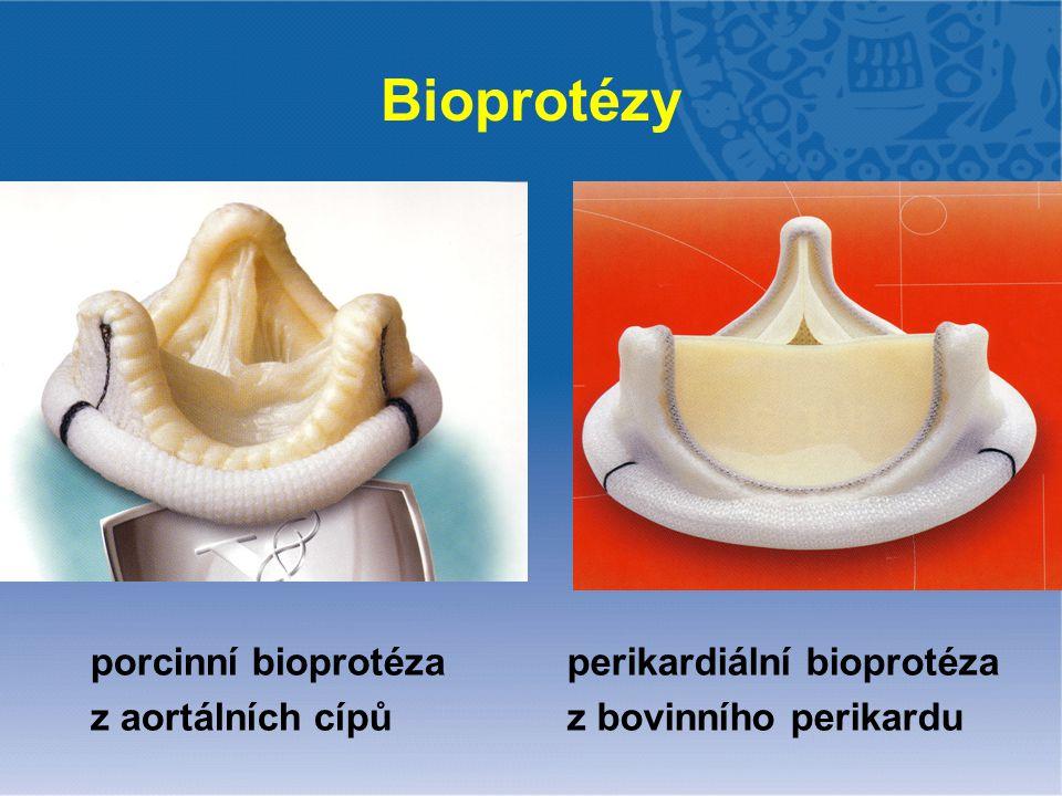 Bioprotézy porcinní bioprotéza z aortálních cípů perikardiální bioprotéza z bovinního perikardu