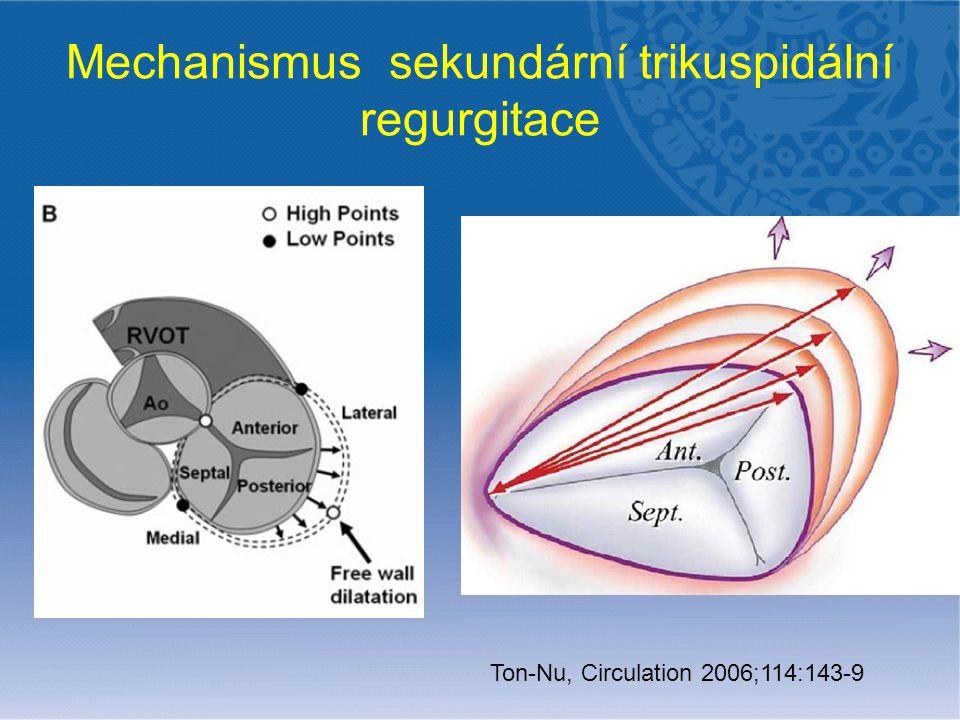 Mechanismus sekundární trikuspidální regurgitace Ton-Nu, Circulation 2006;114:143-9