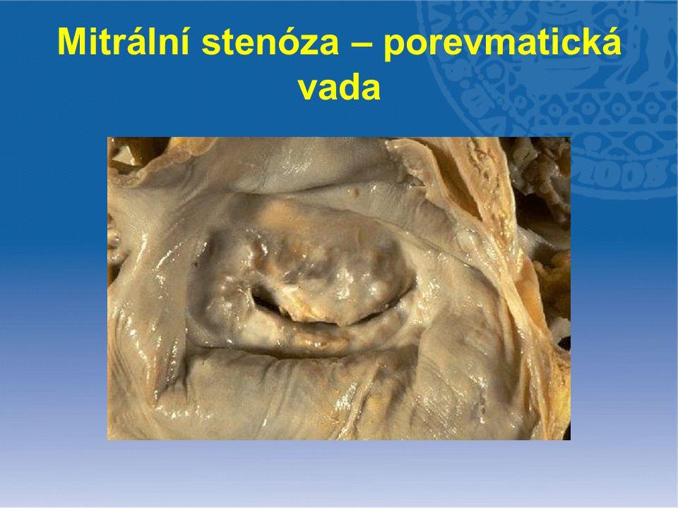 Mitrální stenóza - patofyziologie ↑ tlakový gradient LS-LK ↑ tlak v LS plicní hypertenze postkapilární smíšená zatížení PK fibrilace síní, trombóza plicní edém pravostranné selhání trikuspidalizace vady