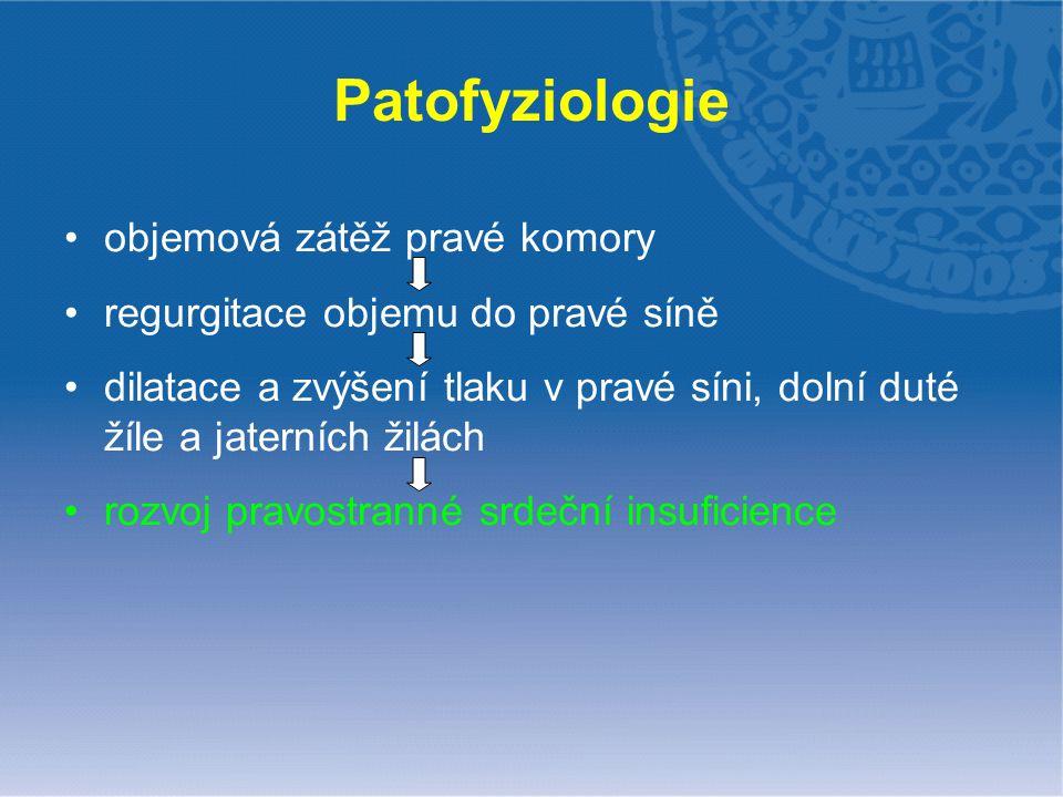 Patofyziologie objemová zátěž pravé komory regurgitace objemu do pravé síně dilatace a zvýšení tlaku v pravé síni, dolní duté žíle a jaterních žilách