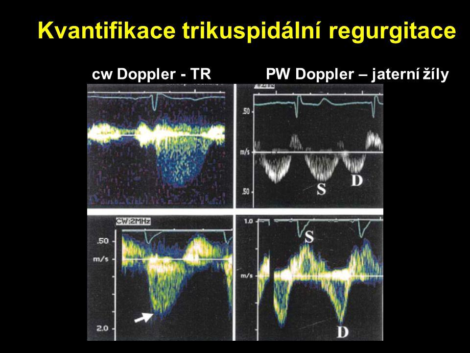 Kvantifikace trikuspidální regurgitace cw Doppler - TRPW Doppler – jaterní žíly