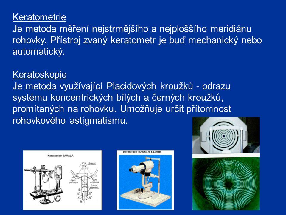 Keratometrie Je metoda měření nejstrmějšího a nejploššího meridiánu rohovky. Přístroj zvaný keratometr je buď mechanický nebo automatický. Keratoskopi