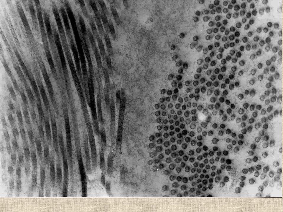 Typy kolagenu I.typ - v kůži, fasciích, kostech, vaz.