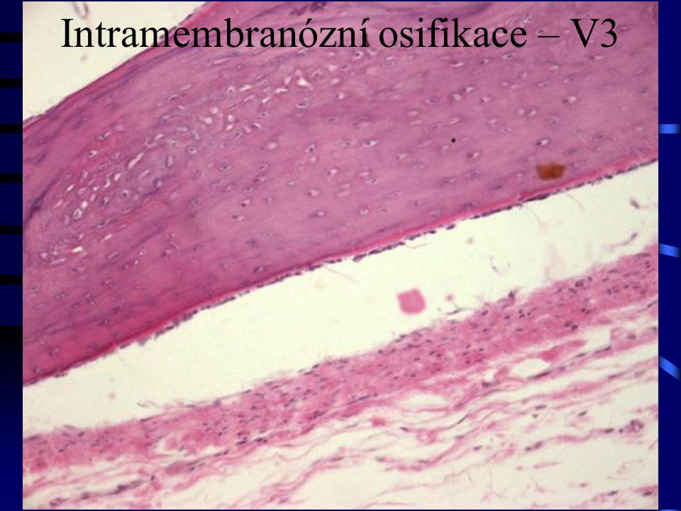 Intramembranózní osifikace – V3