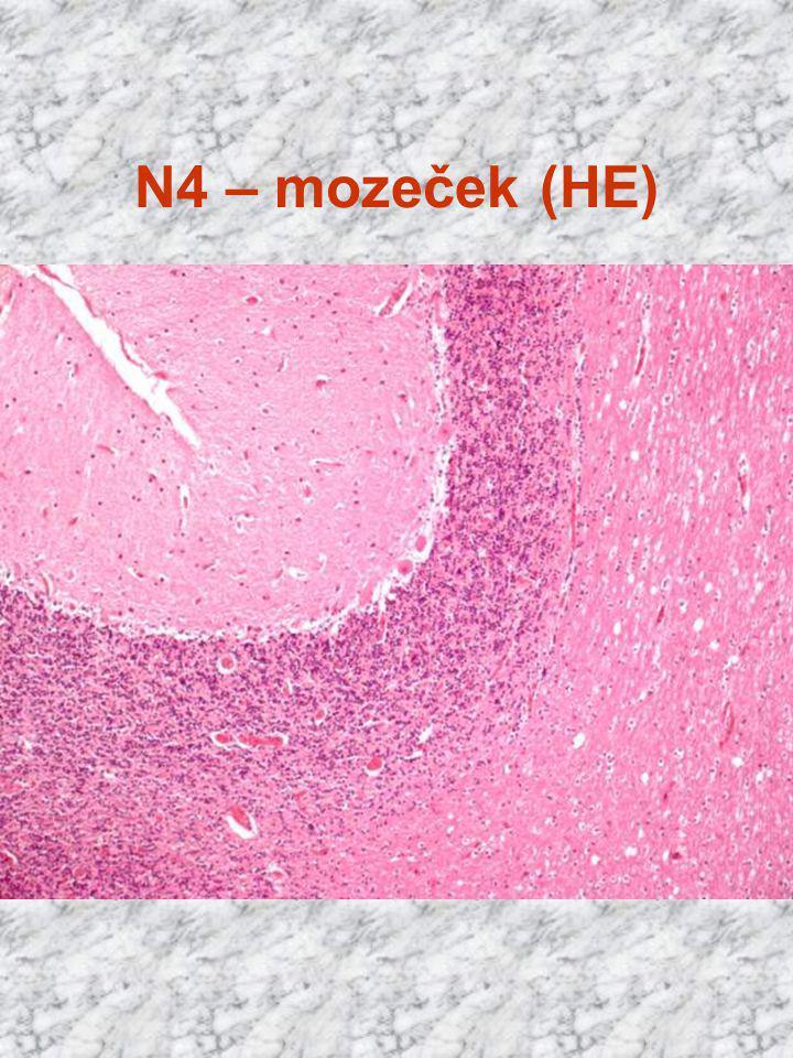 N4 – mozeček (HE)