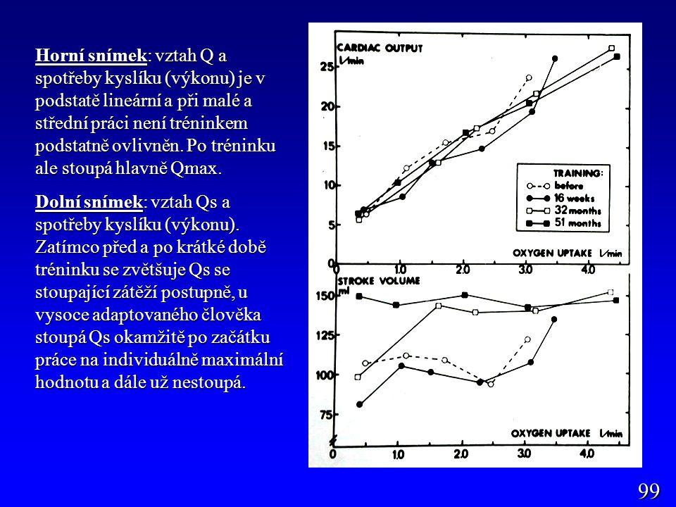 99 Horní snímek: vztah Q a spotřeby kyslíku (výkonu) je v podstatě lineární a při malé a střední práci není tréninkem podstatně ovlivněn. Po tréninku