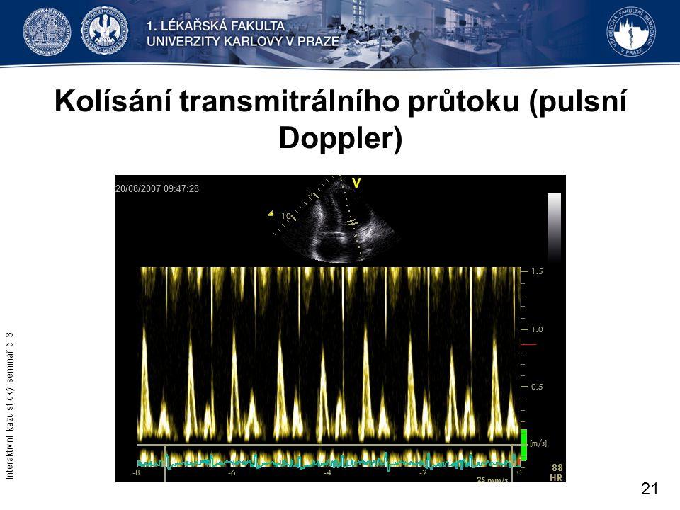 Kolísání transmitrálního průtoku (pulsní Doppler) Interaktivní kazuistický seminář č. 3 21
