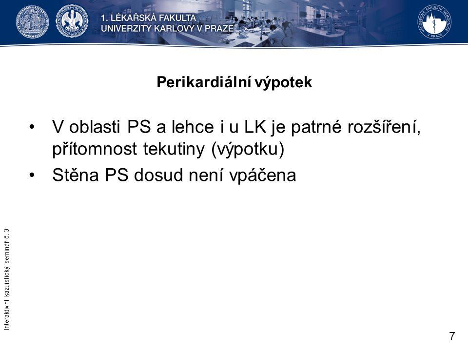 Perikardiální výpotek V oblasti PS a lehce i u LK je patrné rozšíření, přítomnost tekutiny (výpotku) Stěna PS dosud není vpáčena Interaktivní kazuisti