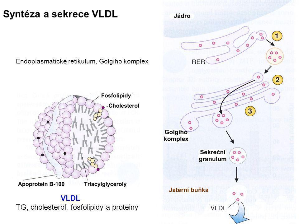 45 letá žena prodělala záchvat anginy pectoris  Laboratoř:↑TG, ↑LDL cholesterol, ↓HDL cholesterol  Sourozenci abnormální lipidový profil, klinické potíže Diagnóza:Familiární kombinovaná hyperlipidémie Prevalence: 1/100 (nejčastější příčina ICHS) Příčina:Zvýšená syntéza Apo B-100 (zvýšená tvorba VLDL) Dědičnost multigenní Projevy: Nejsou tuková deposita v kůži a šlachách ICHS před 50.