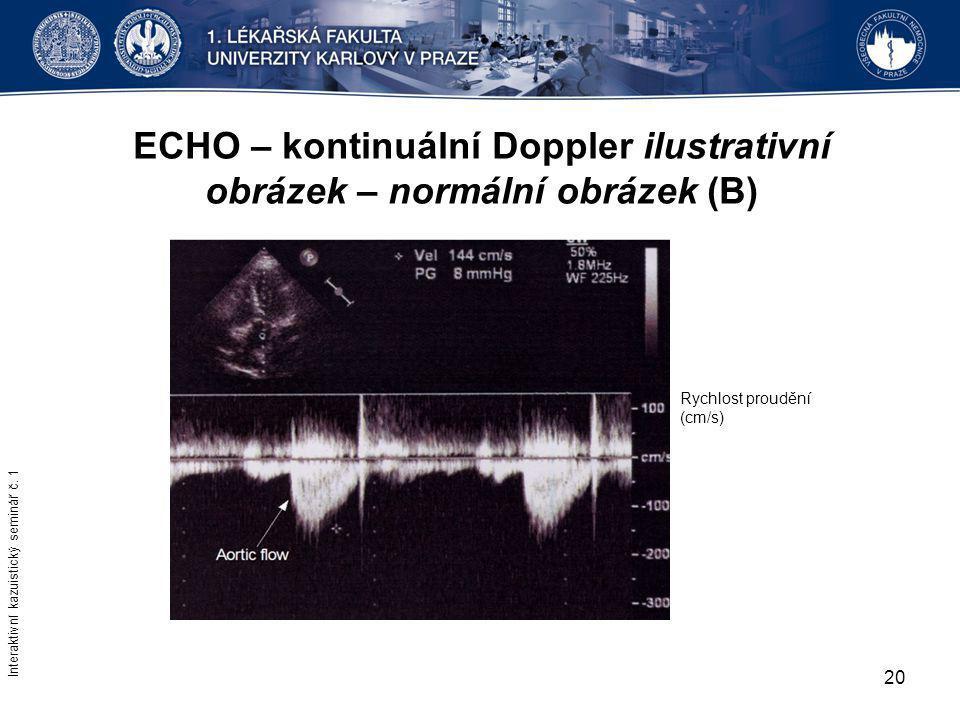 20 ECHO – kontinuální Doppler ilustrativní obrázek – normální obrázek (B) Interaktivní kazuistický seminář č. 1 Rychlost proudění (cm/s)
