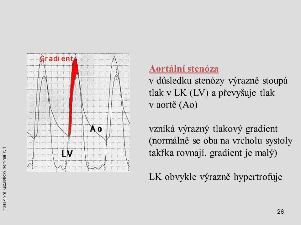 26 Aortální stenóza v důsledku stenózy výrazně stoupá tlak v LK (LV) a převyšuje tlak v aortě (Ao) vzniká výrazný tlakový gradient (normálně se oba na