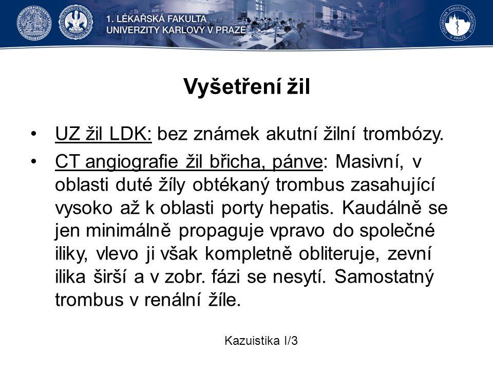 Vyšetření žil UZ žil LDK: bez známek akutní žilní trombózy. CT angiografie žil břicha, pánve: Masivní, v oblasti duté žíly obtékaný trombus zasahující