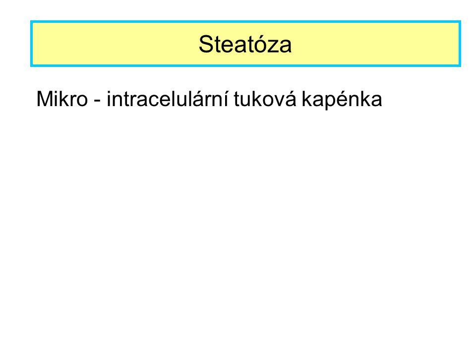 Mikro - intracelulární tuková kapénka Steatóza