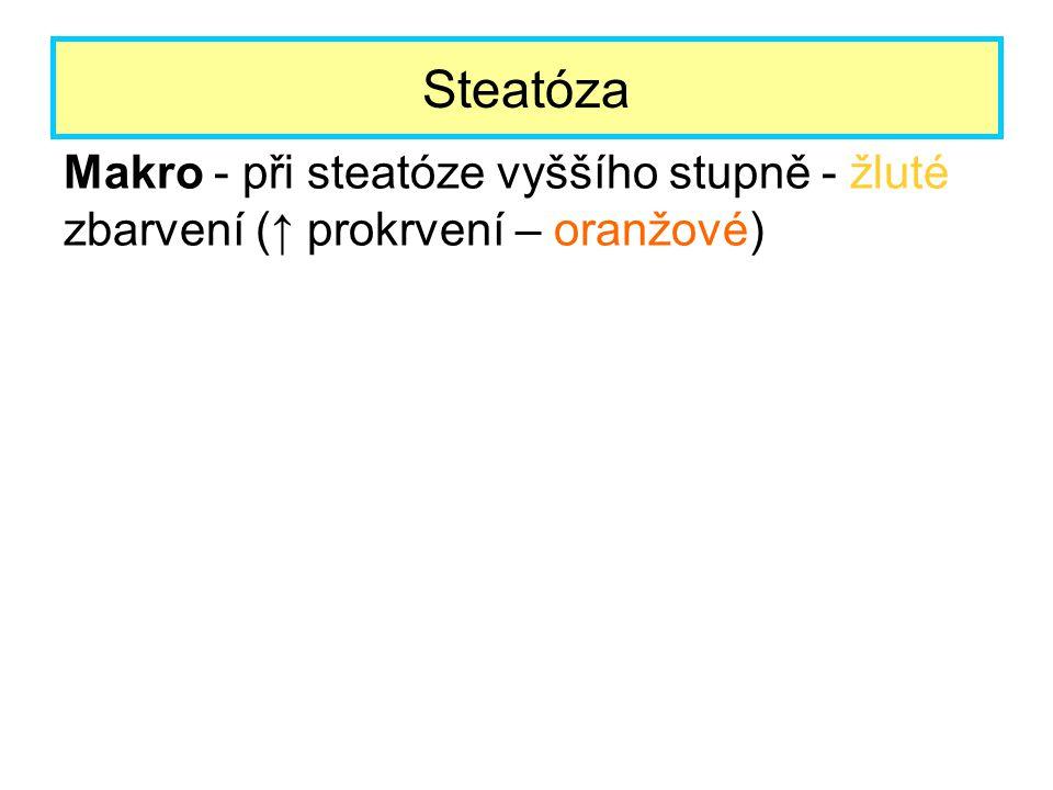 Makro - při steatóze vyššího stupně - žluté zbarvení (↑ prokrvení – oranžové) Steatóza