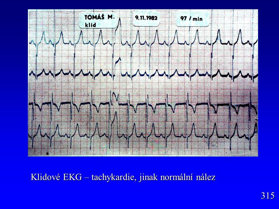 Klidové EKG – tachykardie, jinak normální nález 315