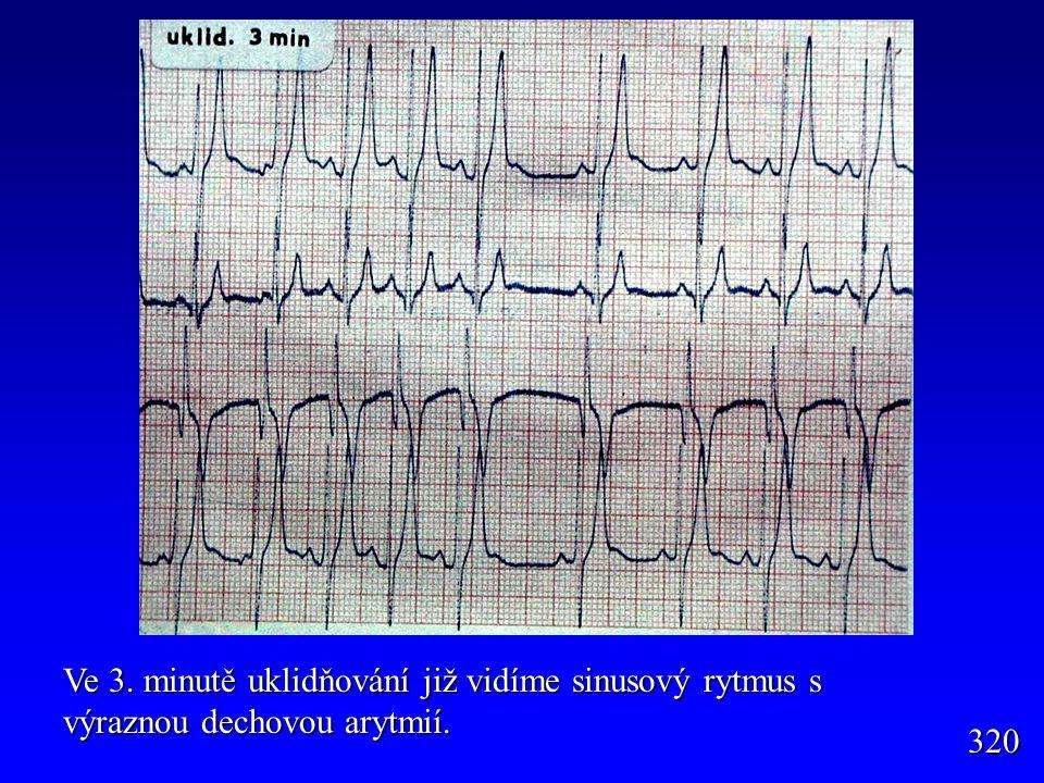 320 Ve 3. minutě uklidňování již vidíme sinusový rytmus s výraznou dechovou arytmií.
