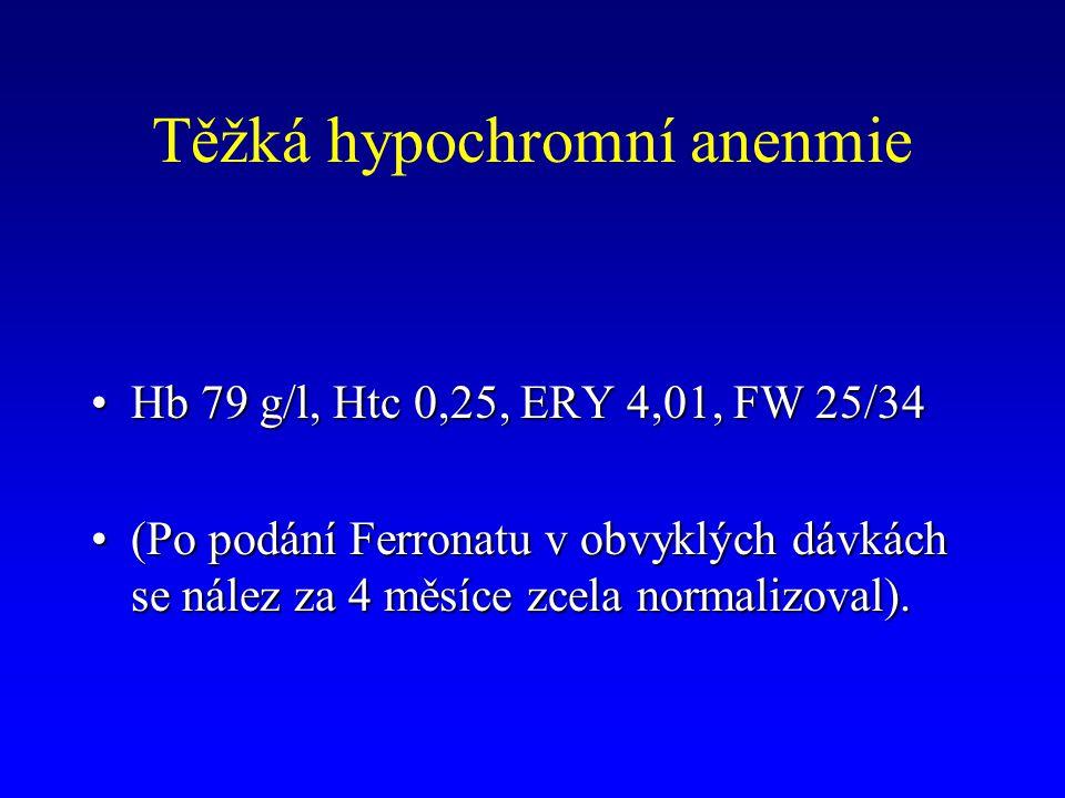 Těžká hypochromní anenmie Hb 79 g/l, Htc 0,25, ERY 4,01, FW 25/34Hb 79 g/l, Htc 0,25, ERY 4,01, FW 25/34 (Po podání Ferronatu v obvyklých dávkách se n