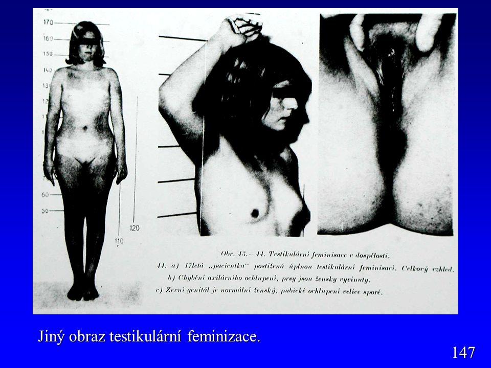 147 Jiný obraz testikulární feminizace.