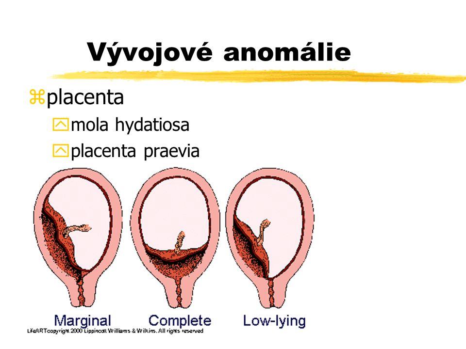 Vývojové anomálie zplacenta ymola hydatiosa yplacenta praevia yplacenta accreta, increta zpupečník ypříliš krátký či dlouhý ychybění a. umbilicalis zm
