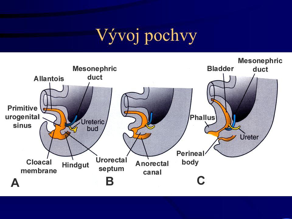 Vývoj pochvy vzniká z uterovaginálního kanálu a urogenit. sinu (SU) dva sinovaginální bulby –proliferací vznik vaginální ploténky (VP) –proliferacín s