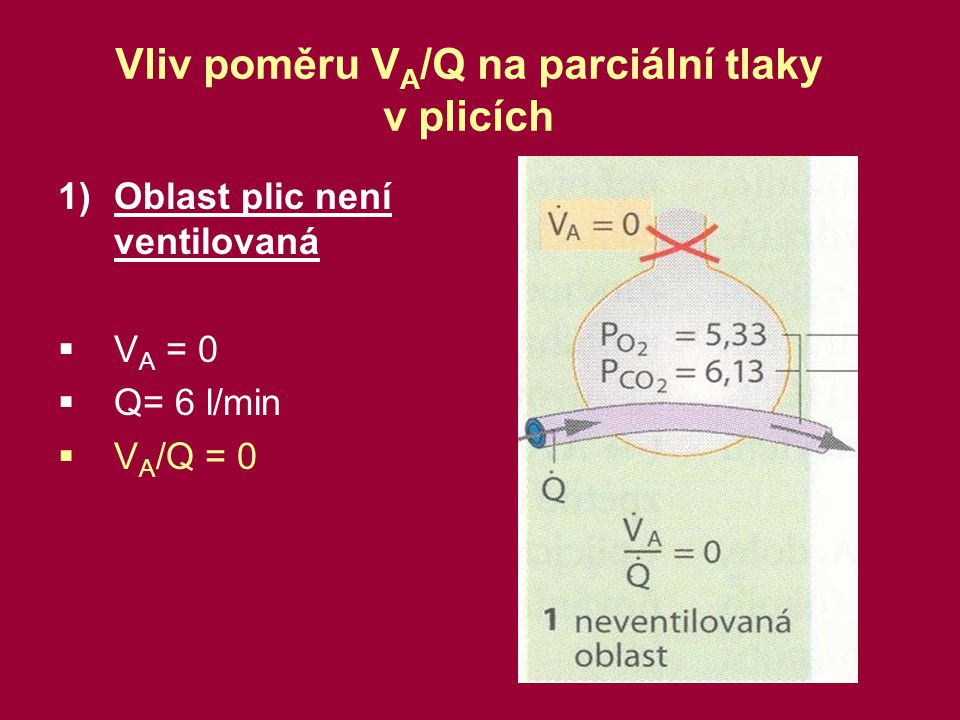 2) Oblast není perfundovaná  V A = 5.6 l/min  Q = 0  V A /Q = ∞ Funkční mrtvý prostor.