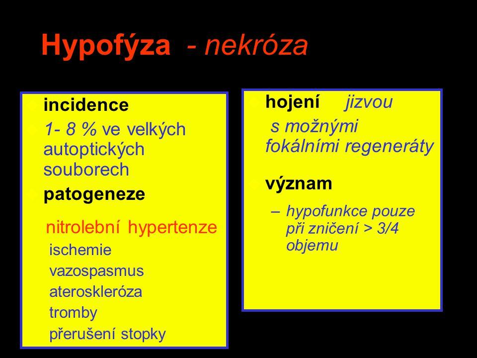 Hypofýza - nekróza u incidence u 1- 8 % ve velkých autoptických souborech u patogeneze nitrolební hypertenze ischemie vazospasmus ateroskleróza tromby