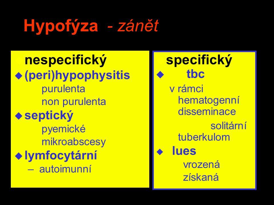 Hypofýza - zánět u nespecifický u (peri)hypophysitis purulenta non purulenta u septický pyemické mikroabscesy u lymfocytární – autoimunní u specifický