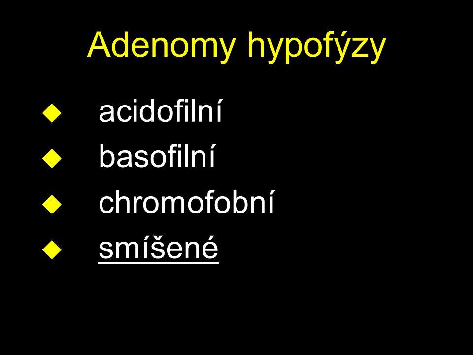 Adenomy hypofýzy u acidofilní u basofilní u chromofobní u smíšené