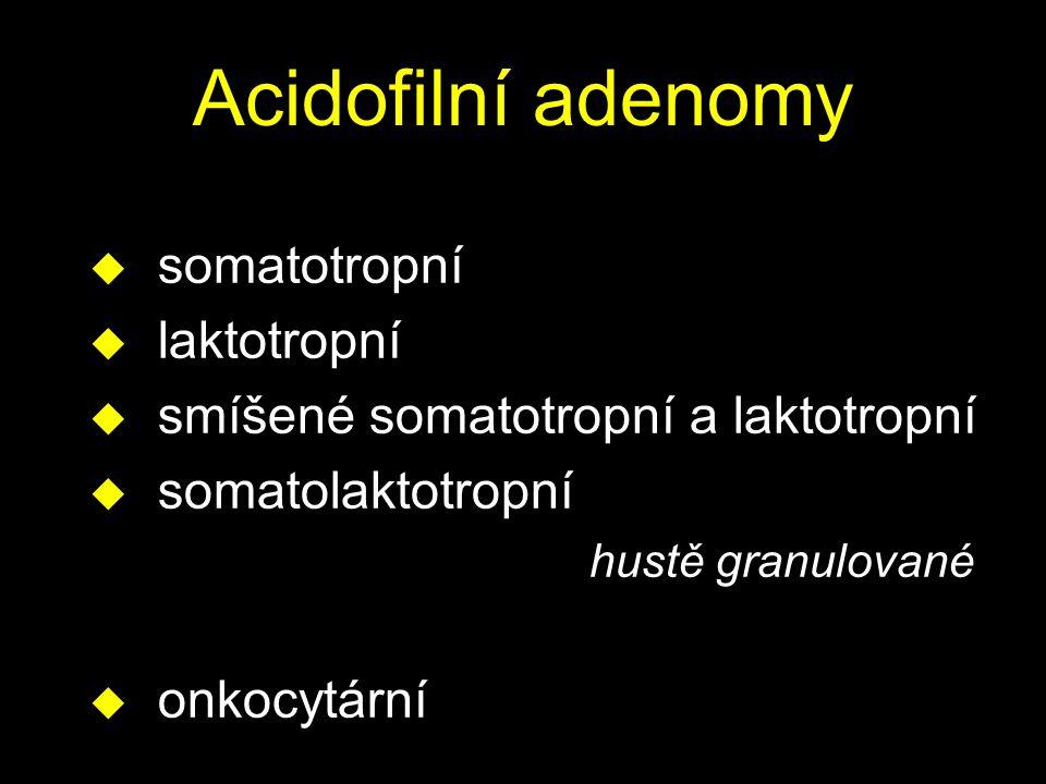 Acidofilní adenomy u somatotropní u laktotropní u smíšené somatotropní a laktotropní u somatolaktotropní hustě granulované u onkocytární