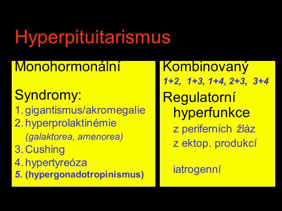 Hyperpituitarismus Monohormonální Syndromy: 1.gigantismus/akromegalie 2.hyperprolaktinémie (galaktorea, amenorea) 3.Cushing 4.hypertyreóza 5.(hypergon