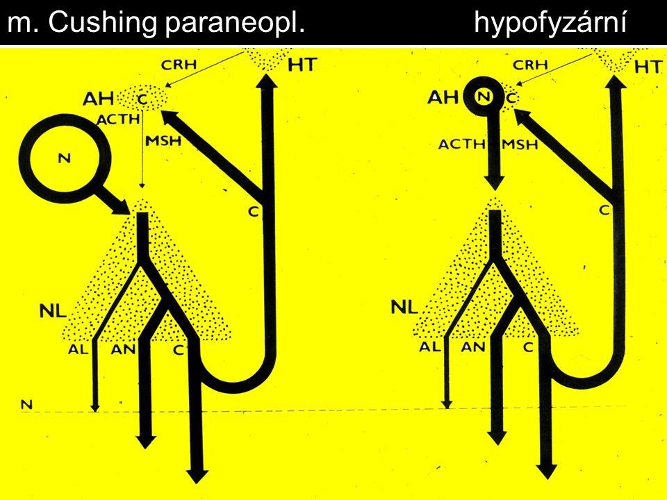 m. Cushing paraneopl.hypofyzární