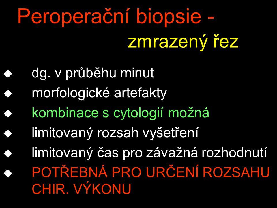 Peroperační biopsie - zmrazený řez u dg.