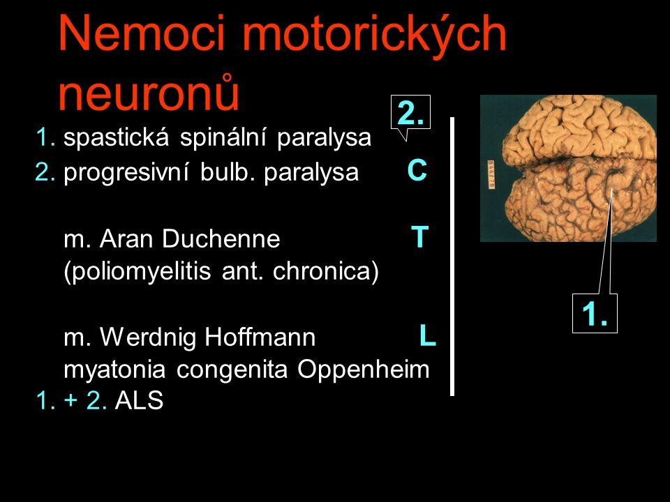 Nemoci motorických neuronů 1.spastická spinální paralysa 2.