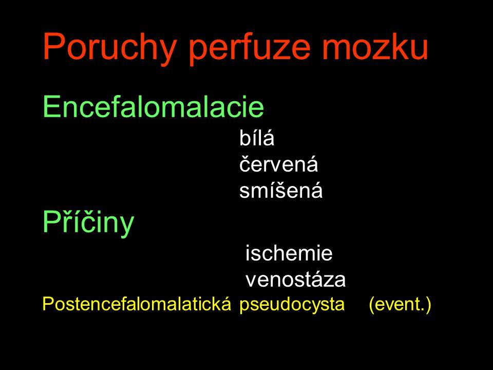 Poruchy perfuze mozku Encefalomalacie bílá červená smíšená Příčiny ischemie venostáza Postencefalomalatická pseudocysta (event.)