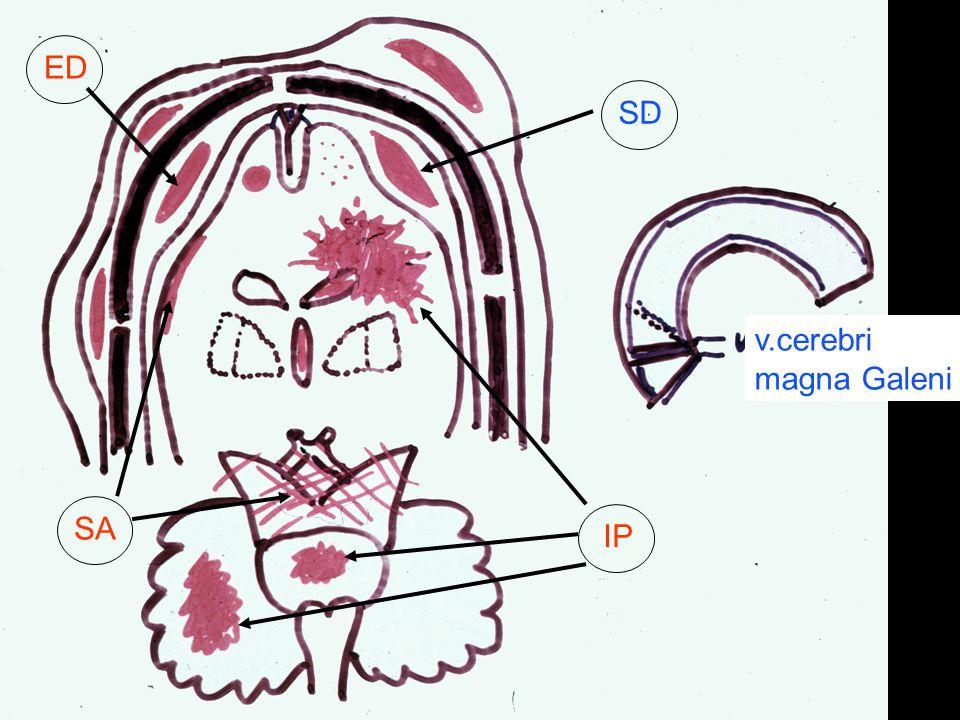 v.cerebri magna Galeni ED SD SA IP
