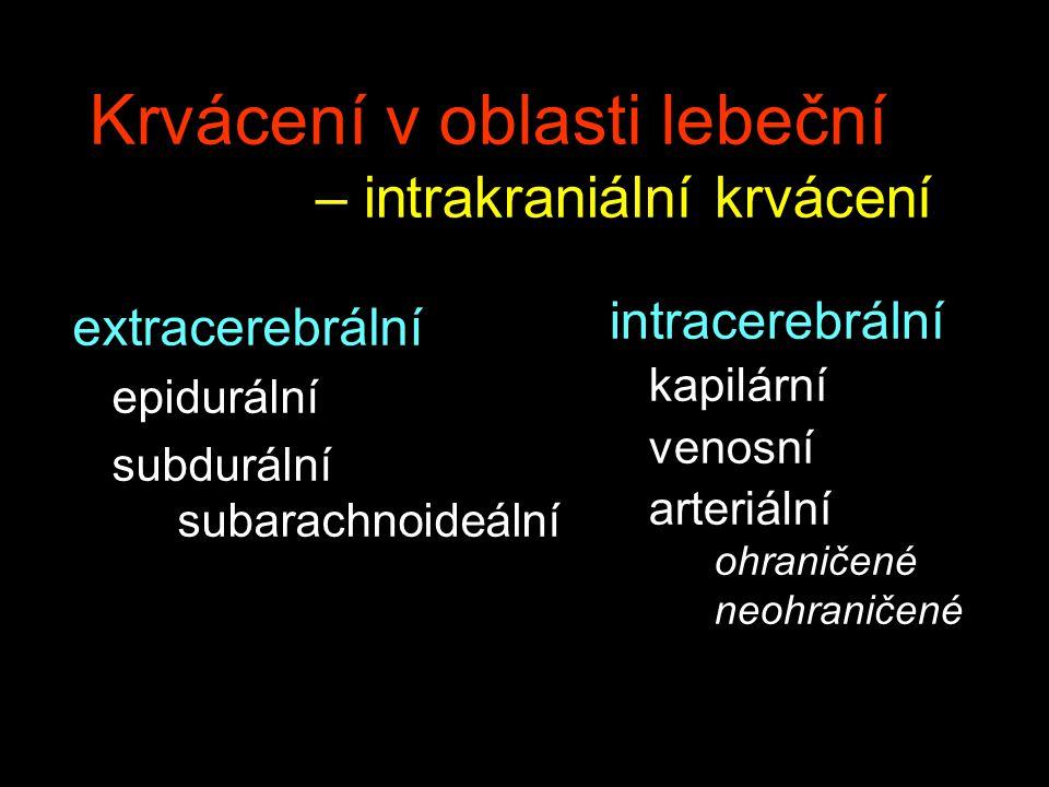 Krvácení v oblasti lebeční – intrakraniální krvácení extracerebrální epidurální subdurální subarachnoideální intracerebrální kapilární venosní arteriá