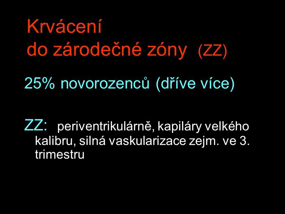 Krvácení do zárodečné zóny (ZZ) 25% novorozenců (dříve více) ZZ: periventrikulárně, kapiláry velkého kalibru, silná vaskularizace zejm. ve 3. trimestr