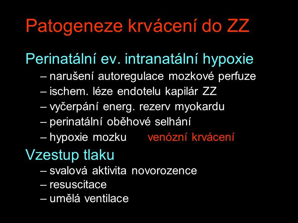 Patogeneze krvácení do ZZ Perinatální ev. intranatální hypoxie –narušení autoregulace mozkové perfuze –ischem. léze endotelu kapilár ZZ –vyčerpání ene