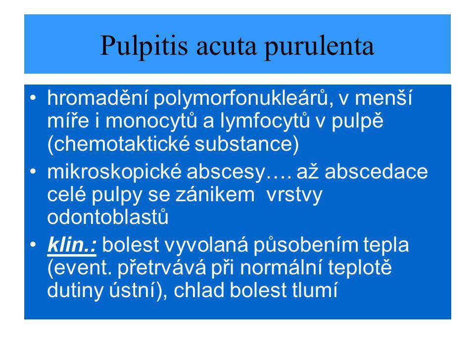 Pulpitis acuta purulenta hromadění polymorfonukleárů, v menší míře i monocytů a lymfocytů v pulpě (chemotaktické substance) mikroskopické abscesy….